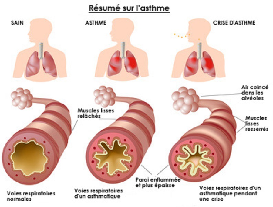 asthme-resume